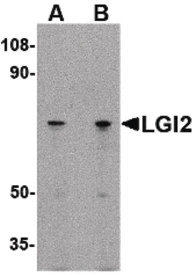 LGI2 Rabbit anti-Human, Mouse, Rat, Polyclonal, Invitrogen 100 µg;