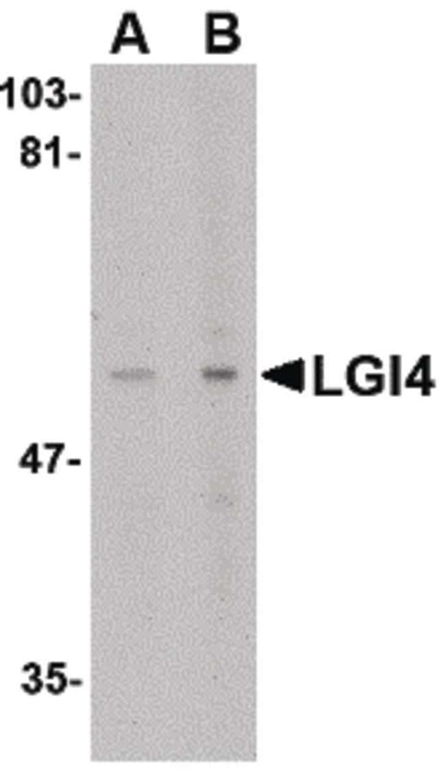 LGI4 Rabbit anti-Human, Mouse, Rat, Polyclonal, Invitrogen 100 µg;