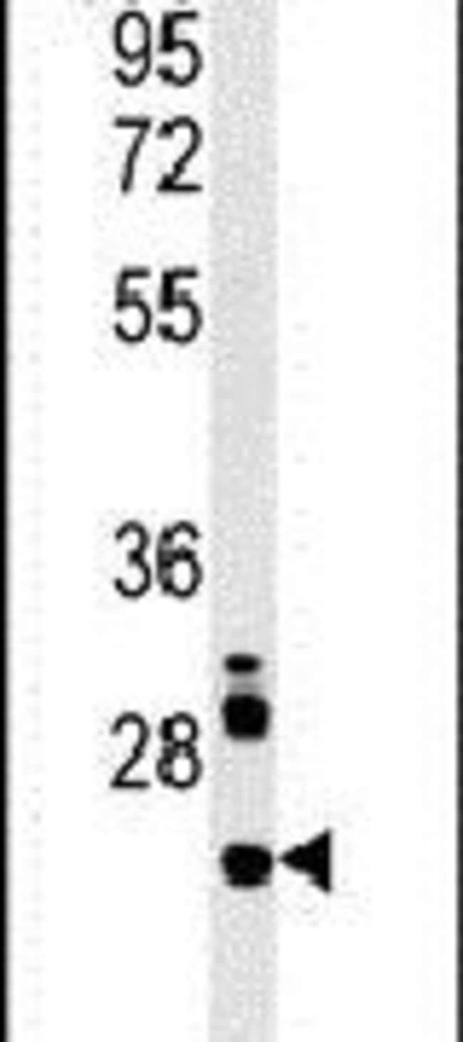 LHFPL3 Rabbit anti-Human, Mouse, Polyclonal, Invitrogen 400 µL; Unconjugated
