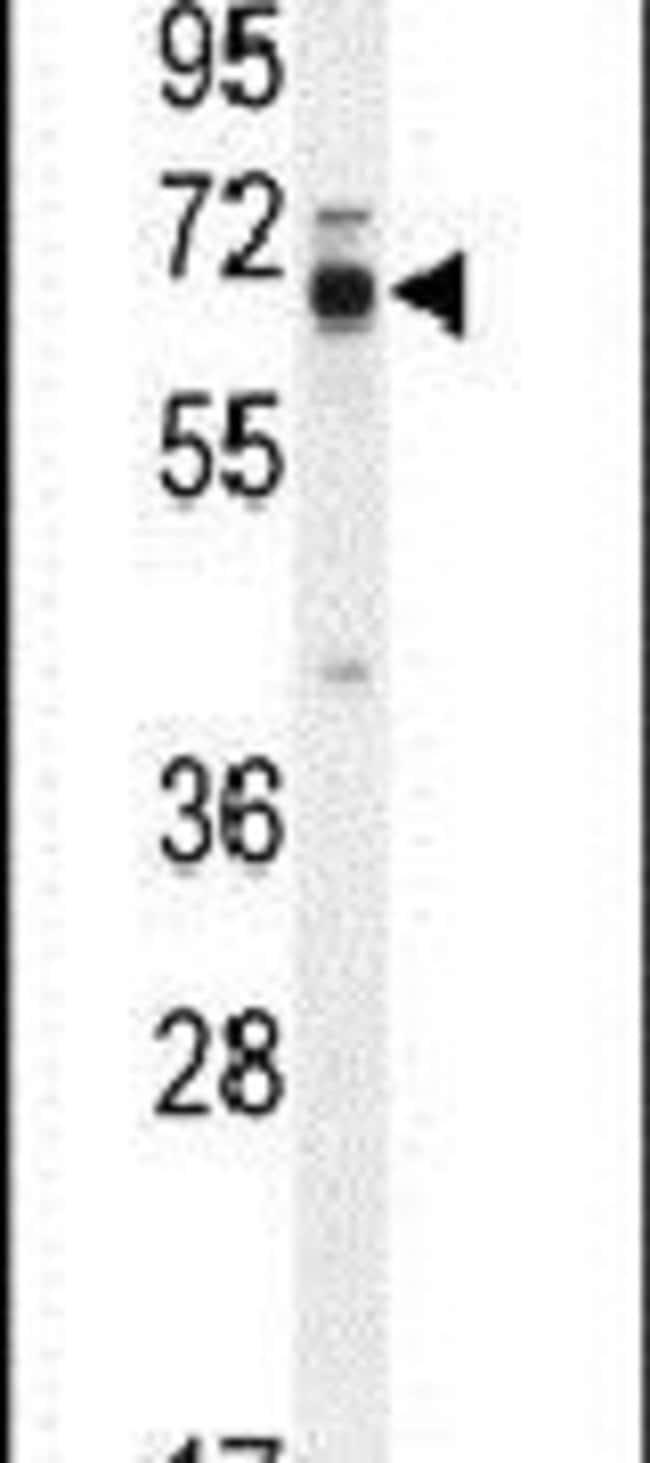 LMOD2 Rabbit anti-Human, Mouse, Polyclonal, Invitrogen 400 µL; Unconjugated