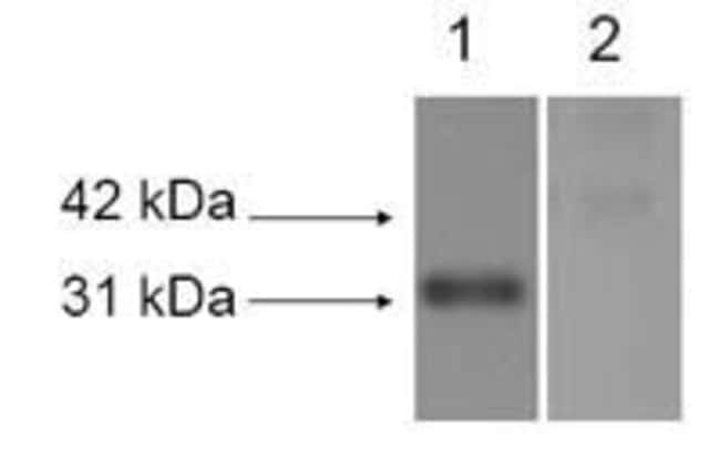 LOX Rabbit anti-Human, Mouse, Non-human primate, Rat, Polyclonal, Invitrogen