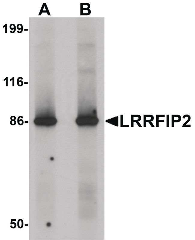 LRRFIP2 Rabbit anti-Human, Mouse, Rat, Polyclonal, Invitrogen 100 µg;
