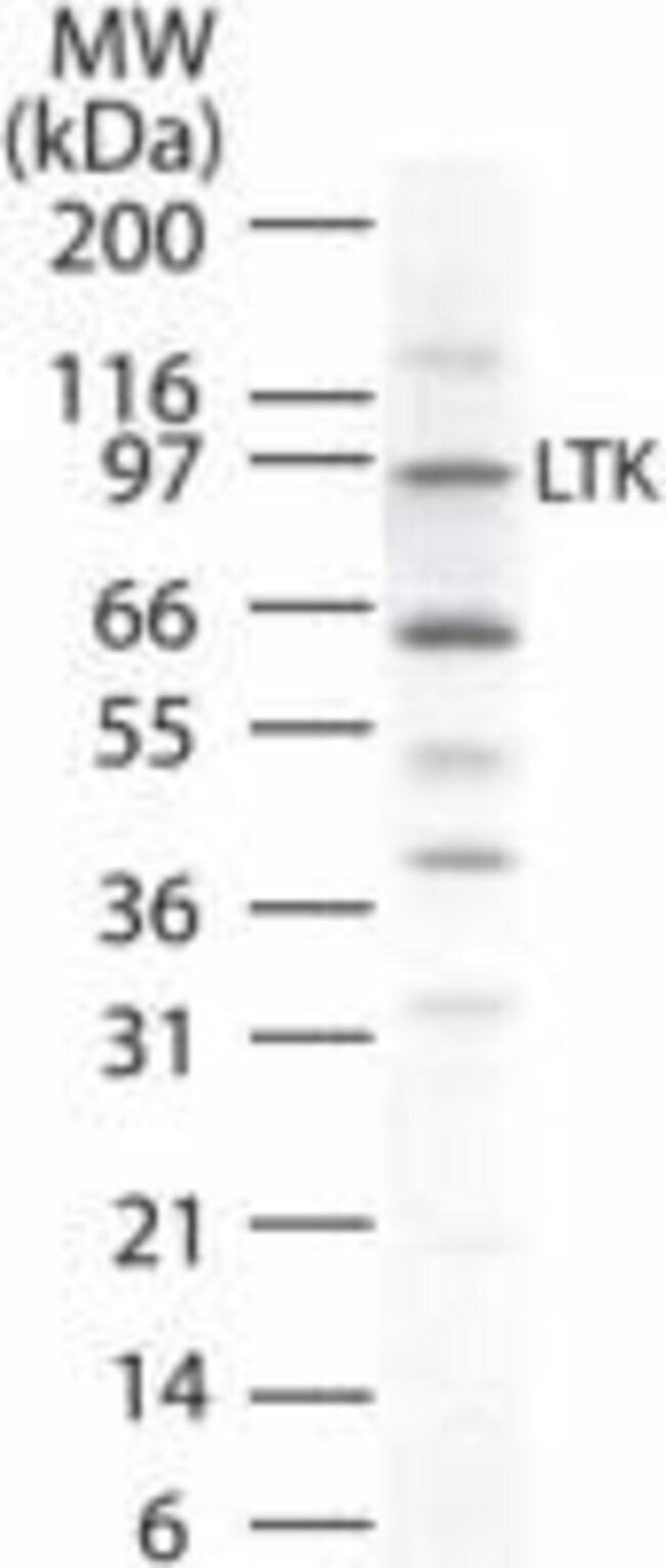LTK Rabbit anti-Human, Polyclonal, Invitrogen 100 μg; Unconjugated:Antibodies