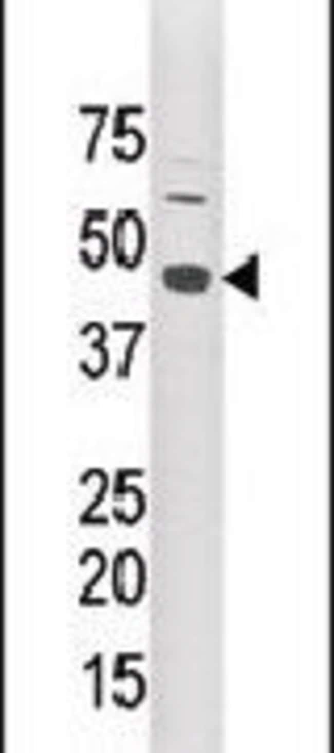 LYK5 Rabbit anti-Human, Mouse, Polyclonal, Invitrogen 400 µL; Unconjugated