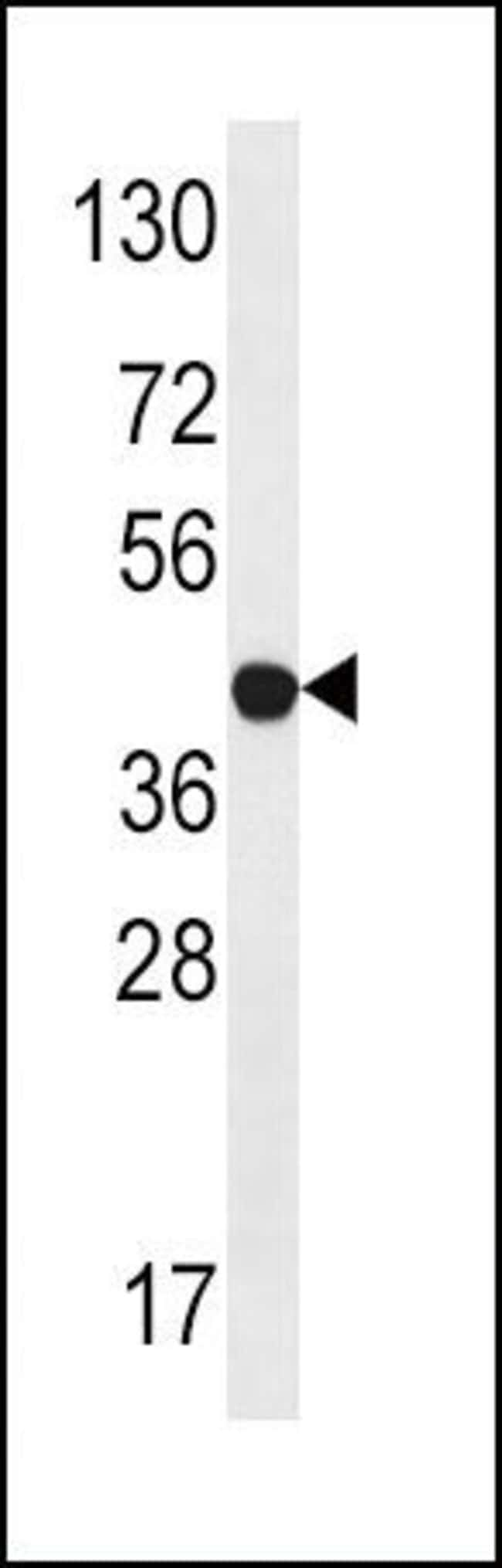 LYK5 Rabbit anti-Human, Polyclonal, Invitrogen 400 µL; Unconjugated