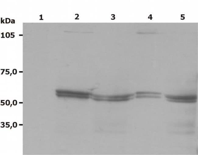 Lyn Mouse anti-Human, Mouse, Rat, Clone: LYN-01, Invitrogen 100 µg;