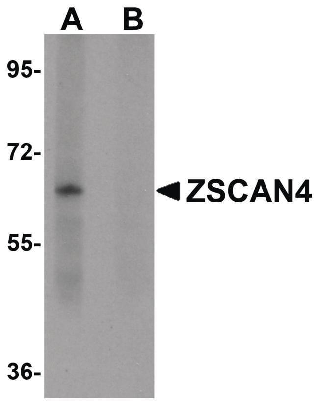 LYRM2 Rabbit anti-Human, Mouse, Rat, Polyclonal, Invitrogen 100 µg;