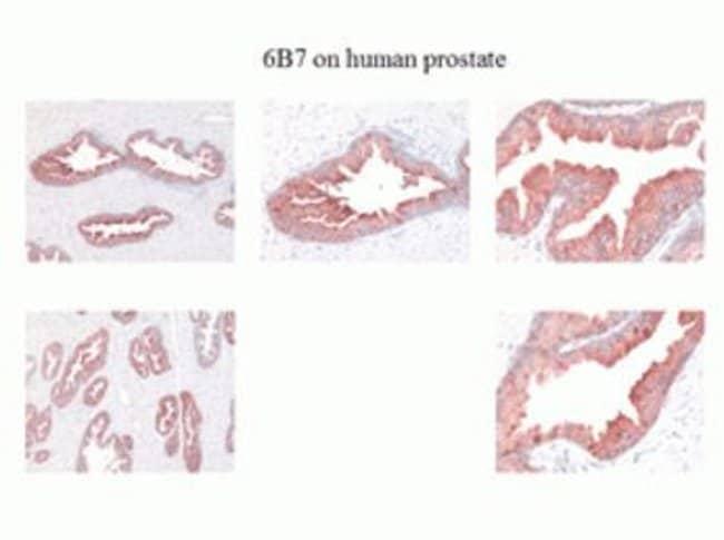 Kallikrein 2 Mouse anti-Human, Clone: 6B7, Invitrogen 100 µL; Unconjugated