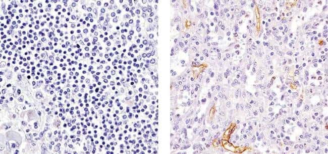 VCAM-1 Mouse anti-Human, Clone: 1.4C3, Invitrogen 100μL; Unconjugated:Antibodies