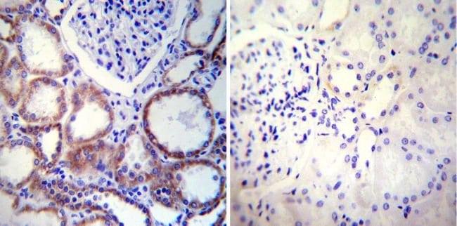 Calnexin Mouse anti-Human, Mouse, Clone: AF18, Invitrogen 100 μL; Unconjugated:Antibodies
