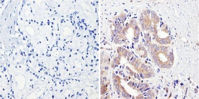 CYP3A7 Mouse anti-Bovine, Human, Clone: F19 P2 H2, Invitrogen 100 μL;