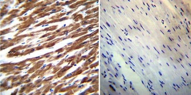 SERCA2 ATPase Mouse anti-Bovine, Canine, Human, Porcine, Rabbit, Rat, Clone: IID8, Invitrogen™ 100 μL; Unconjugated Primary Antibodies Sa to Sg