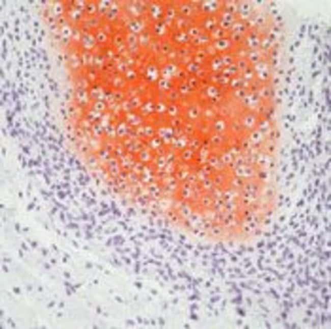 Collagen II Mouse anti-Bovine, Chicken, Human, Mouse, Rat, Clone: 2B1.5,