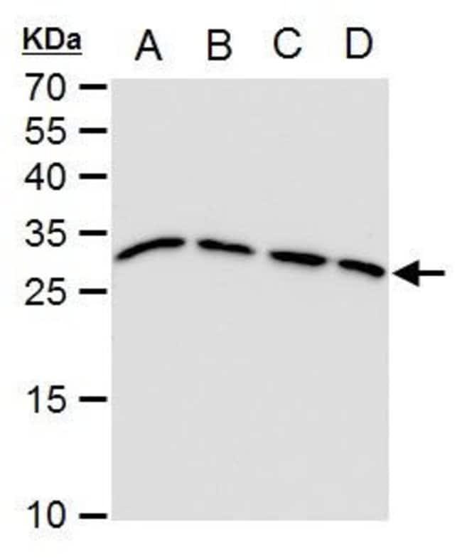 TPI1 Mouse anti-Human, Mouse, Rat, Clone: P1111, Invitrogen 100 µL;