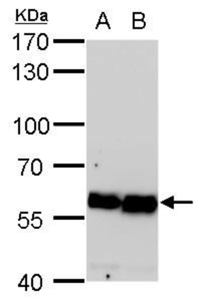 COPD Mouse anti-Human, Mouse, Rat, Clone: P189, Invitrogen 100 µL;