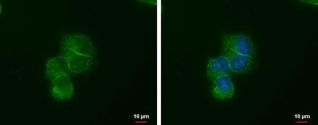 LIN7A Mouse anti-Human, Clone: P377, Invitrogen 100 µL; Unconjugated