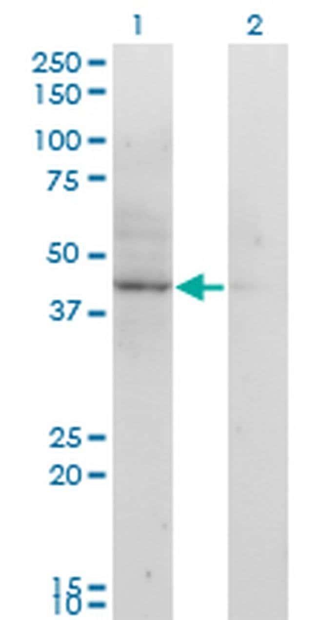 ACAT2 Mouse anti-Human, Clone: 4A5, Invitrogen 100 µg; Unconjugated