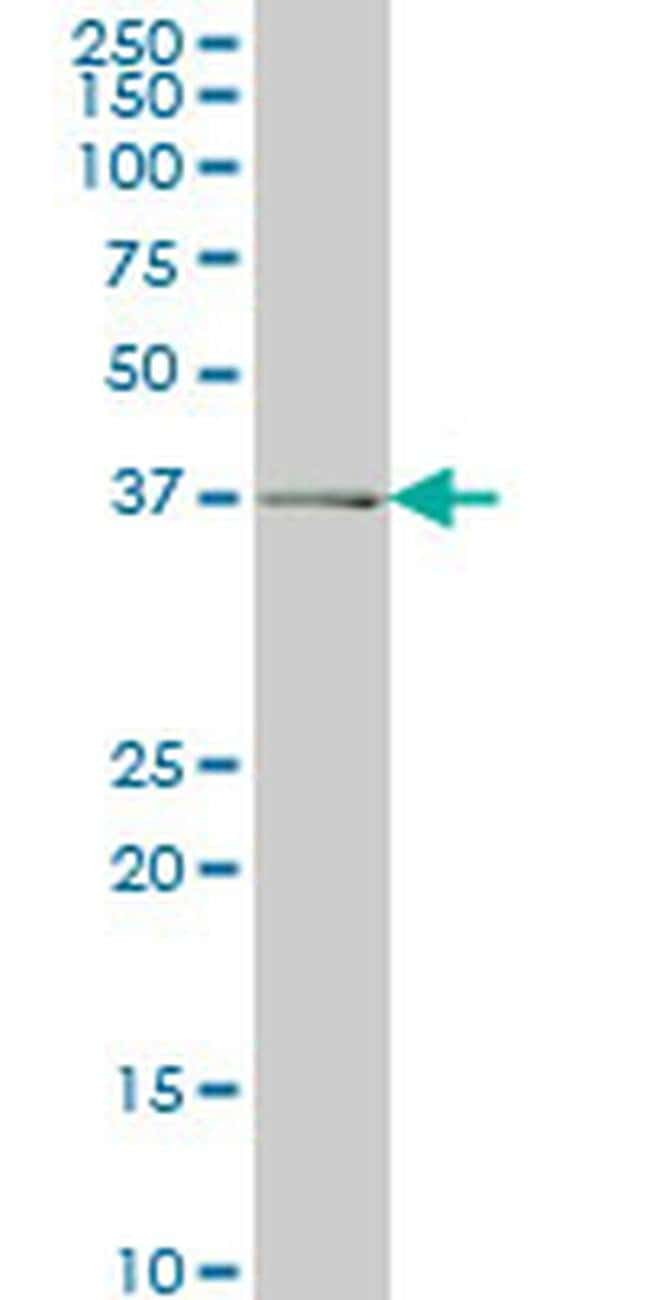 ADH6 Mouse anti-Human, Clone: 4G4, Invitrogen 100 µg; Unconjugated