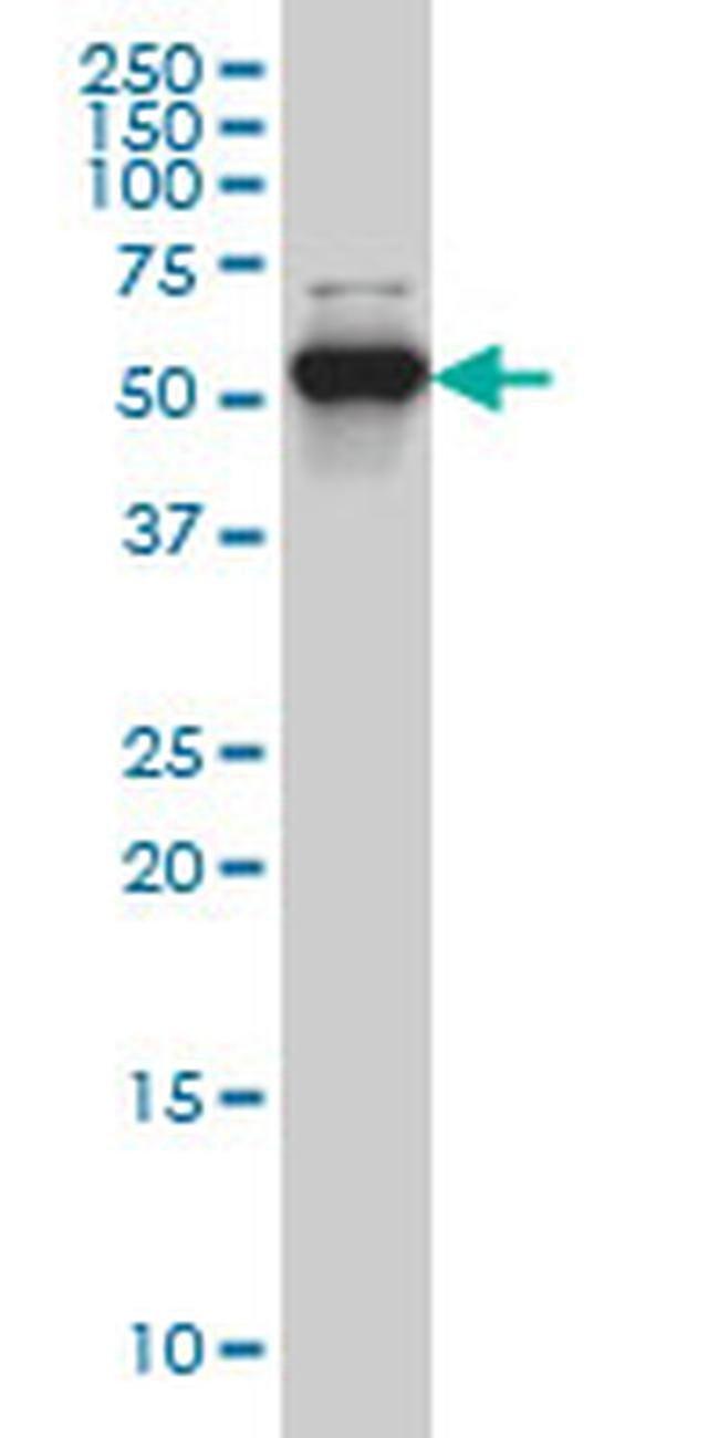 CLK3 Mouse anti-Human, Rat, Clone: 1H2, Invitrogen 100 µg; Unconjugated