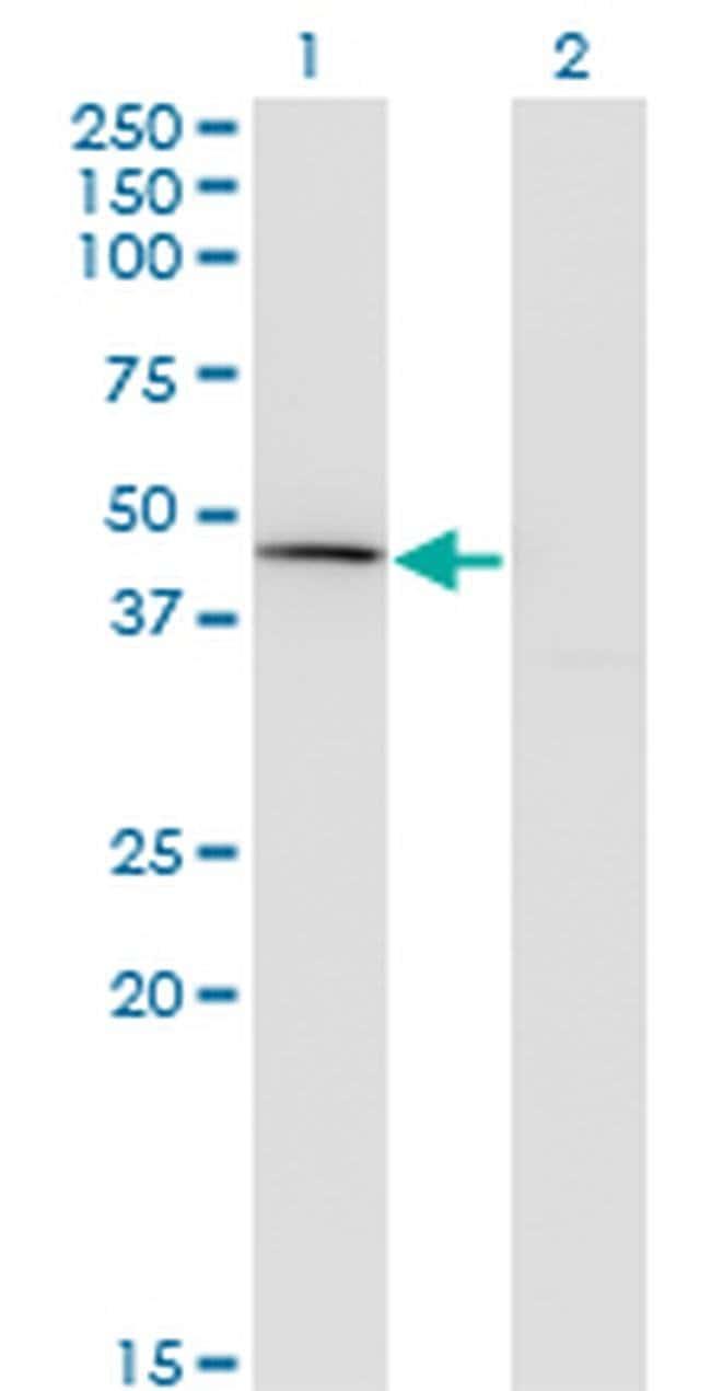 Carboxypeptidase A1 Mouse anti-Human, Clone: 3F11, Invitrogen 100 µg;