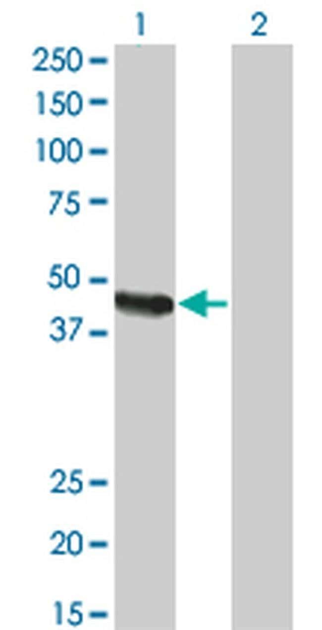 Carboxypeptidase A2 Mouse anti-Human, Clone: 2E11, Invitrogen 100 µg;