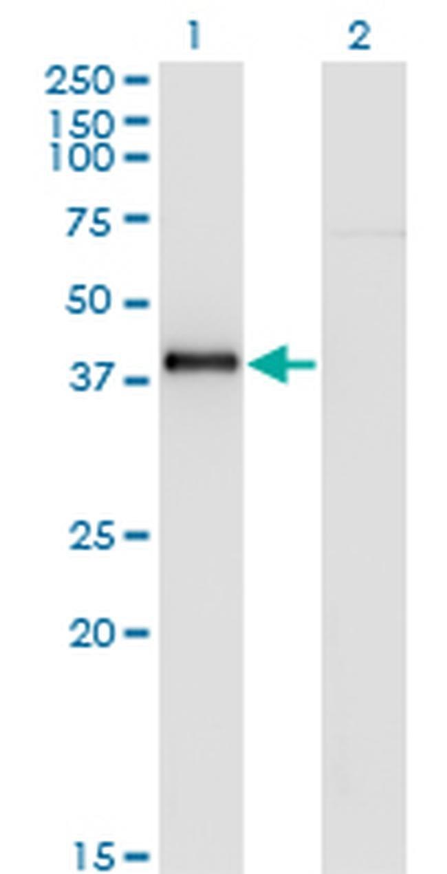 Nkx2.5 Mouse anti-Human, Clone: 4B11, Invitrogen 100 µg; Unconjugated