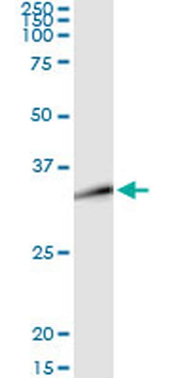 DLX1 Mouse anti-Human, Clone: 1D11, Invitrogen 100 µg; Unconjugated