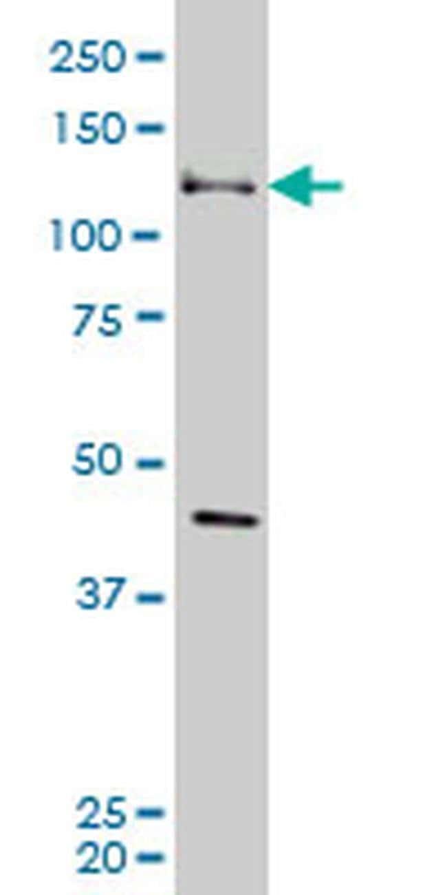 EphB3 Mouse anti-Human, Clone: 4E9, Invitrogen 100 µg; Unconjugated