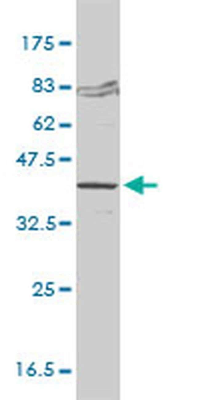 FVT1 Mouse anti-Human, Clone: 2B2-3C11, Invitrogen 100 µg; Unconjugated
