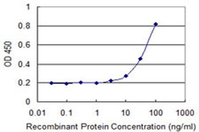 GAMT Mouse anti-Human, Clone: 3H4, Invitrogen 100 µg; Unconjugated