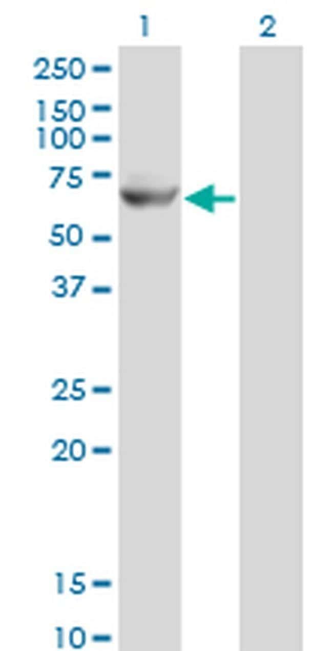 Glycerol kinase 2 Mouse anti-Human, Clone: 3G4, Invitrogen 100 µg;
