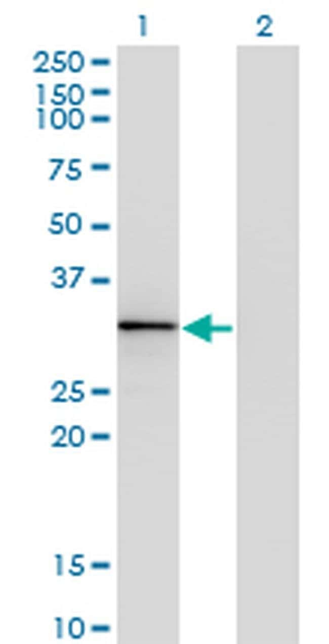 HOXA1/HOXB1/HOXD1 Mouse anti-Human, Clone: 2F12, Invitrogen 100 µg;