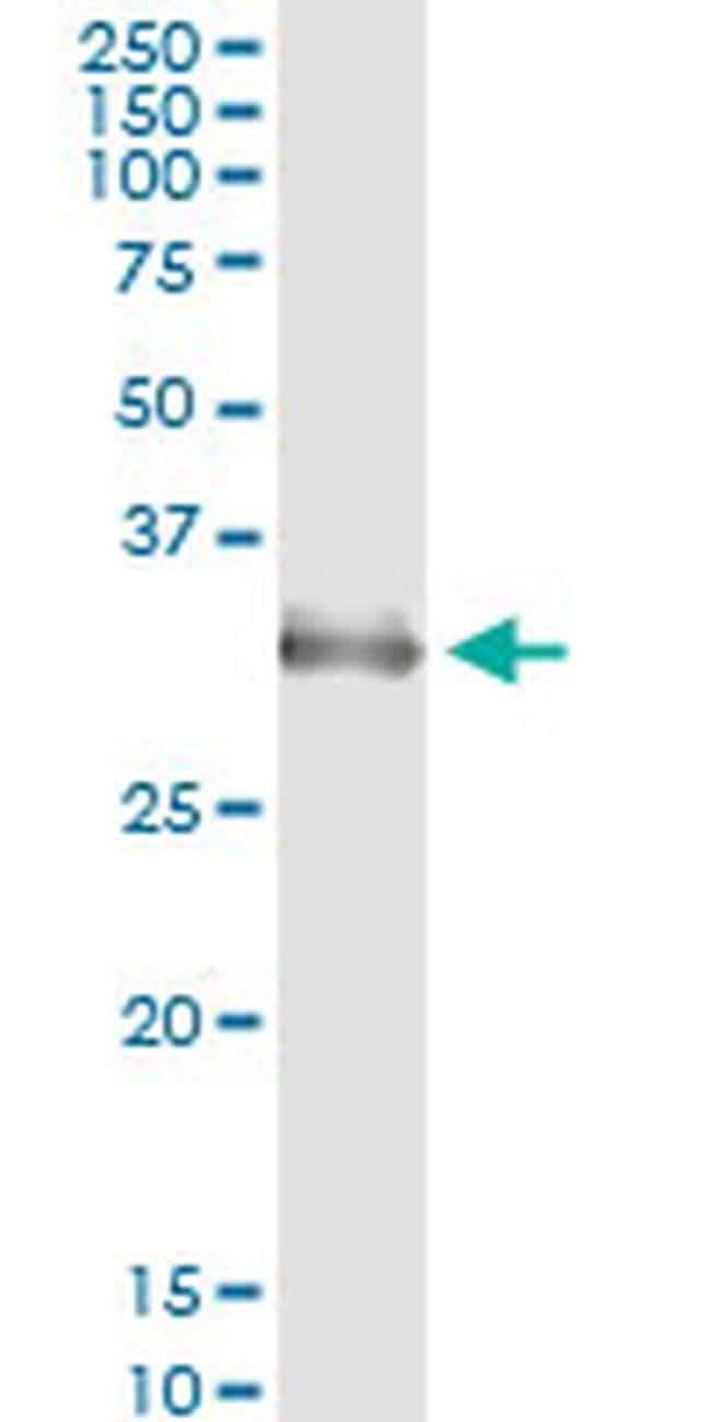 HOXA1/HOXB1/HOXD1 Mouse anti-Human, Clone: 2E5, Invitrogen 100 µg;