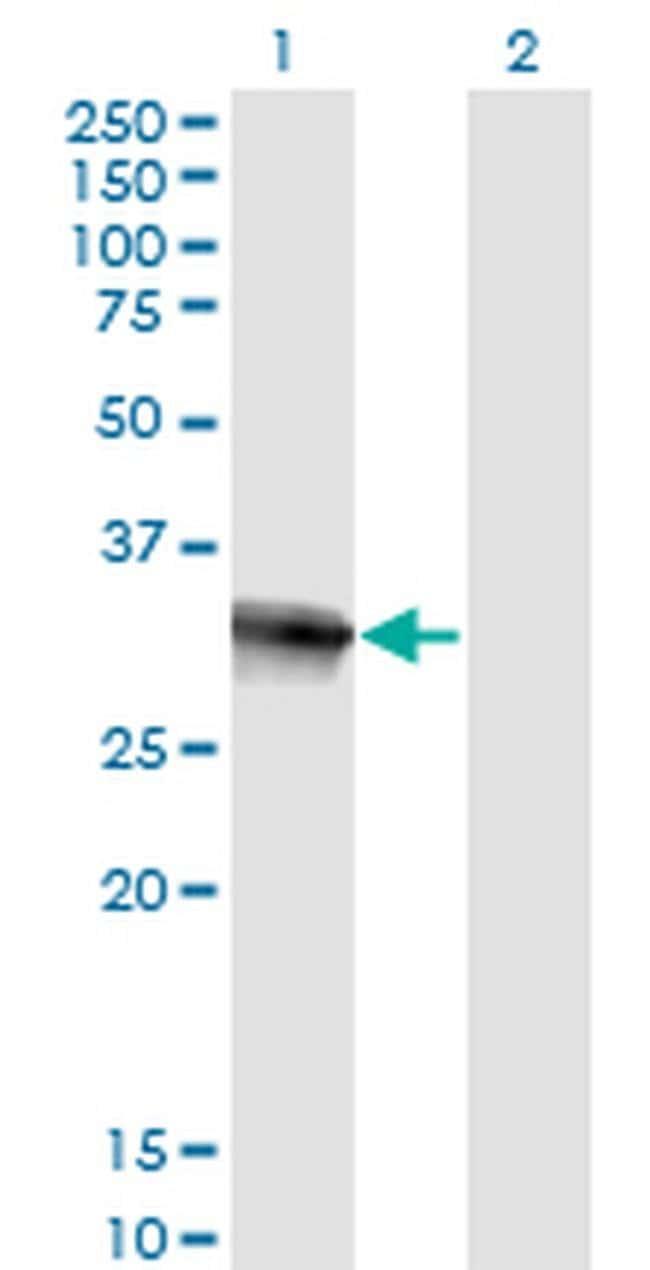 HOXB9 Mouse anti-Human, Clone: 2E8, Invitrogen 100 µg; Unconjugated