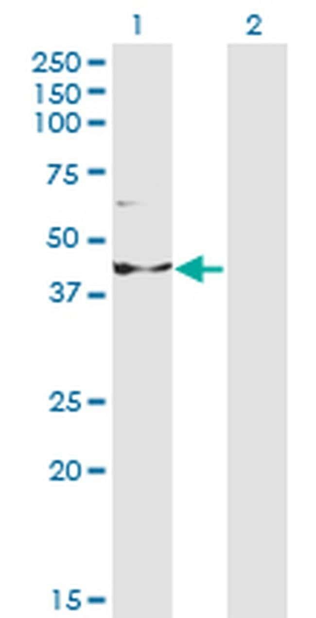 INPP1 Mouse anti-Human, Clone: 1A6, Invitrogen 100 µg; Unconjugated