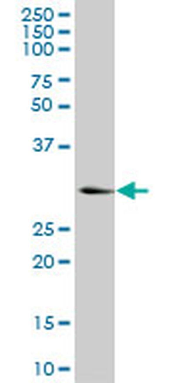 KHK Mouse anti-Human, Clone: S1, Invitrogen 100 µg; Unconjugated
