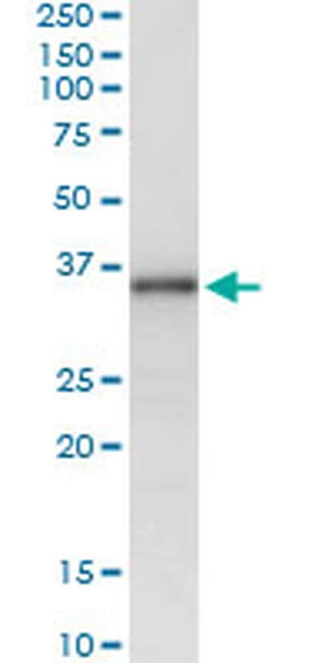 MSX1 Mouse anti-Human, Clone: 1D2, Invitrogen 100 µg; Unconjugated