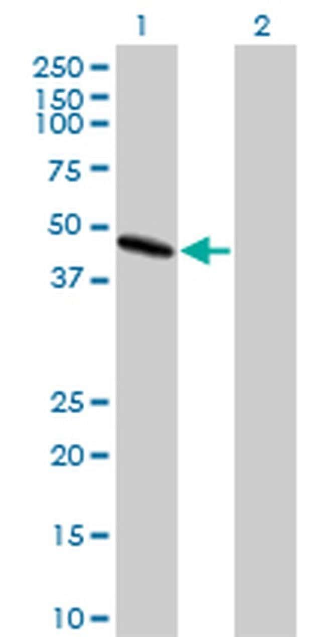 LIS1 Mouse anti-Human, Clone: 5A5, Invitrogen 100 µg; Unconjugated