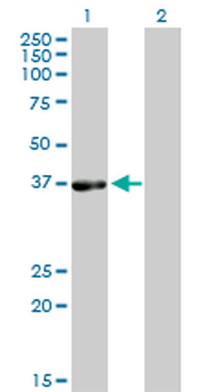 PHYH Mouse anti-Human, Clone: 1F2-5B9, Invitrogen 100 µg; Unconjugated