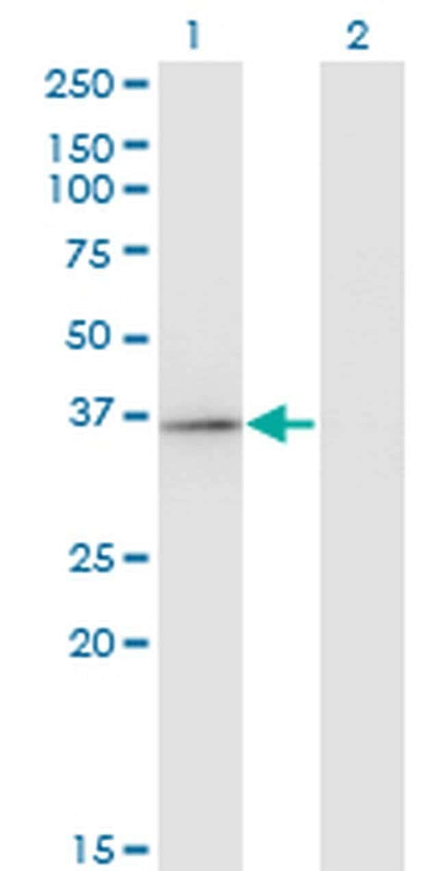 RFXAP Mouse anti-Human, Clone: 1B5, Invitrogen 100 µg; Unconjugated