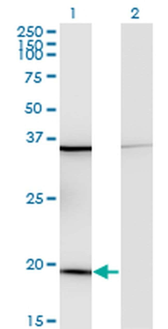 RPL17 Mouse anti-Human, Clone: 3G11, Invitrogen 100 µg; Unconjugated