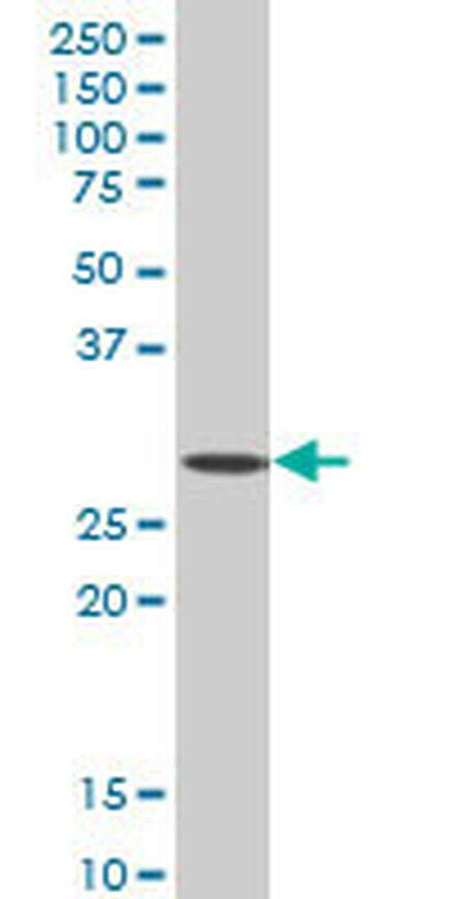 SIX3 Mouse anti-Human, Clone: 4H6, Invitrogen 100 µg; Unconjugated