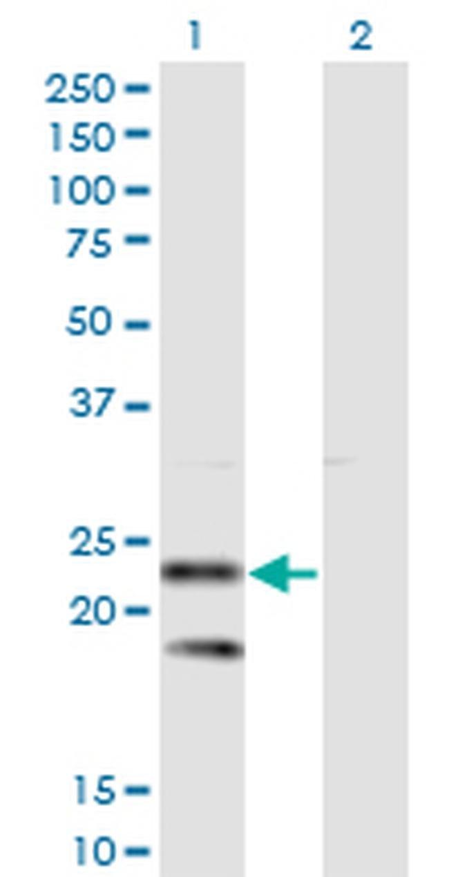 SSR2 Mouse anti-Human, Clone: 4C1, Invitrogen 100 µg; Unconjugated