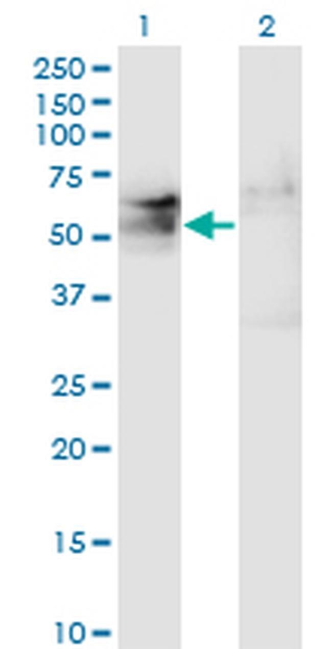 TSPYL1 Mouse anti-Human, Clone: 4F11, Invitrogen 100 µg; Unconjugated