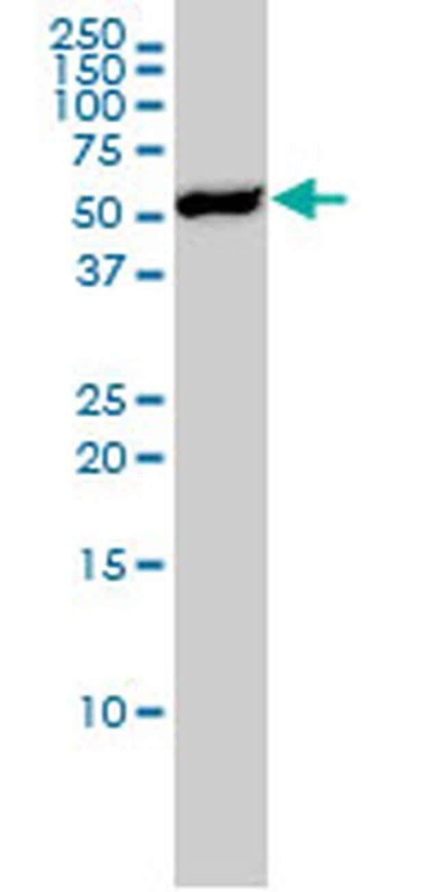 YES1 Mouse anti-Human, Clone: 3C6, Invitrogen 50 µg; Unconjugated