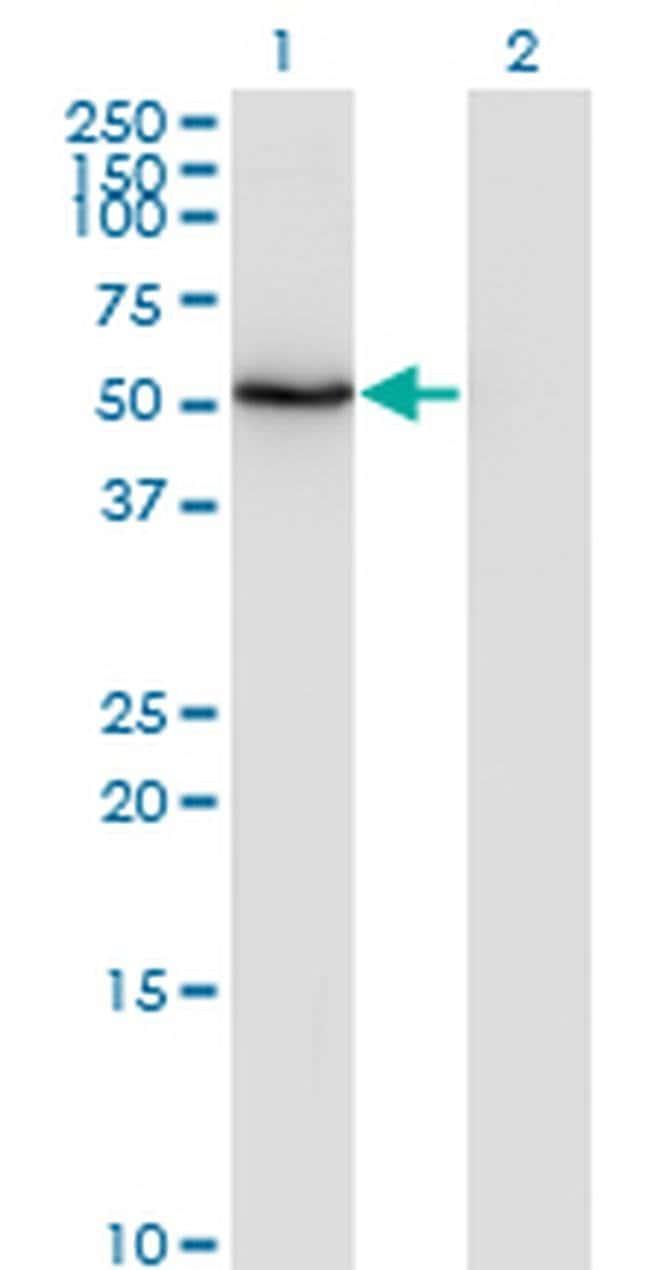 ZNF38 Mouse anti-Human, Clone: 4B11, Invitrogen 100 µg; Unconjugated