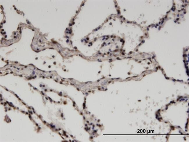 ZNF192 Mouse anti-Human, Clone: 3B10, Invitrogen 100 µg; Unconjugated