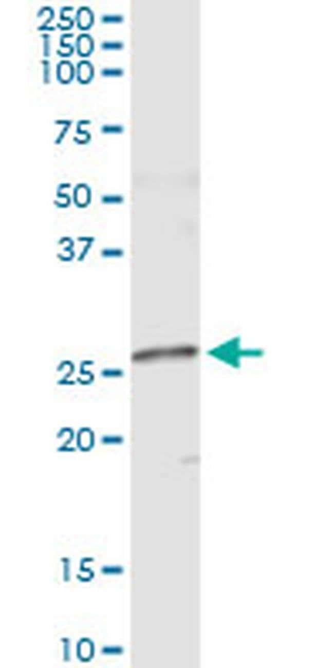 NME5 Mouse anti-Human, Clone: 4F5, Invitrogen 100 µg; Unconjugated