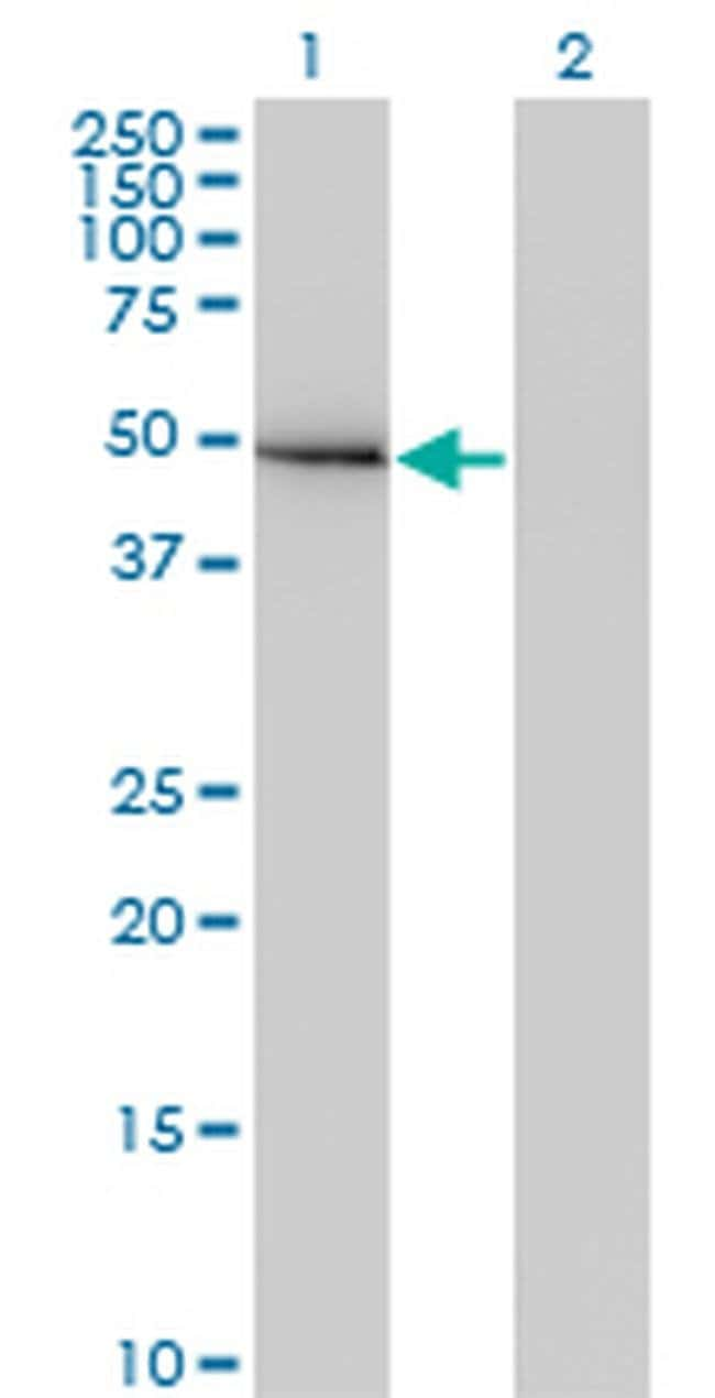 GIT2 Mouse anti-Human, Clone: M1, Invitrogen 100 µg; Unconjugated