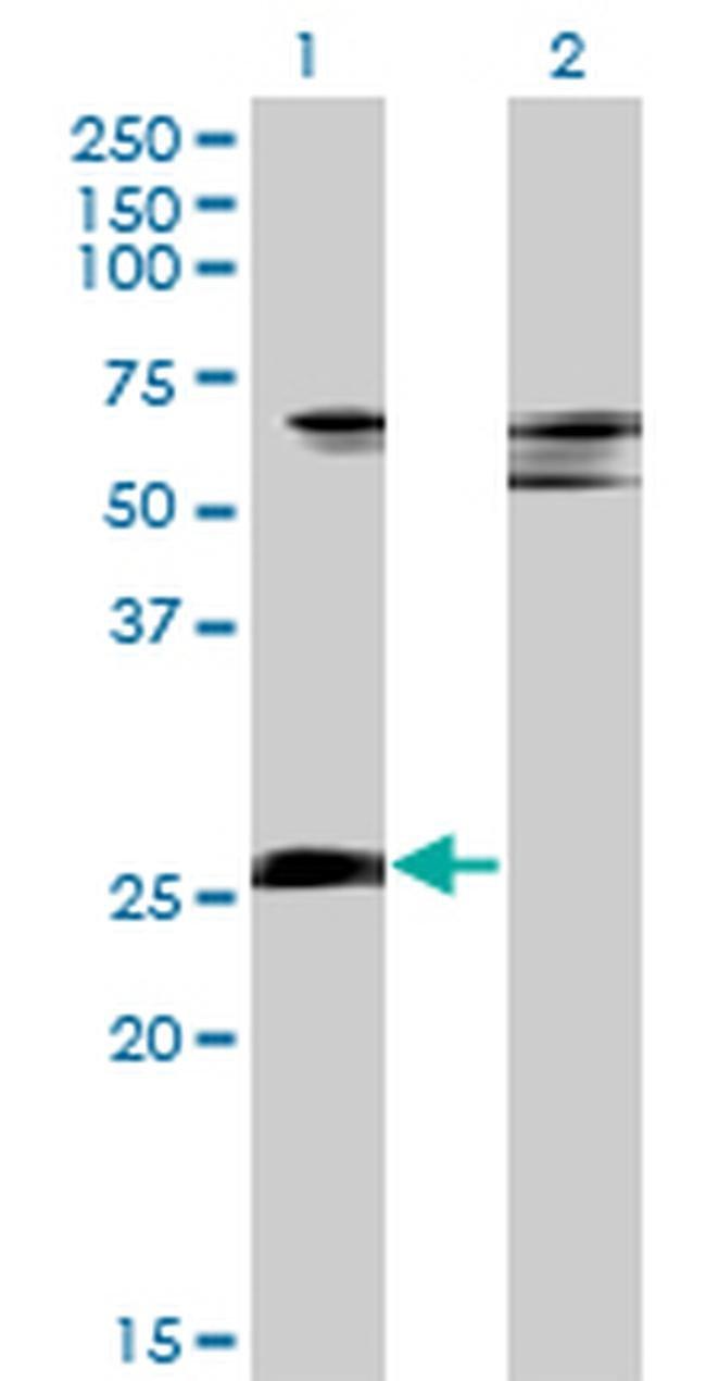 ZNF266 Mouse anti-Human, Clone: 4G5, Invitrogen 100 µg; Unconjugated